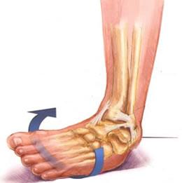 Mis valud voivad olla ola liigese artroosiga